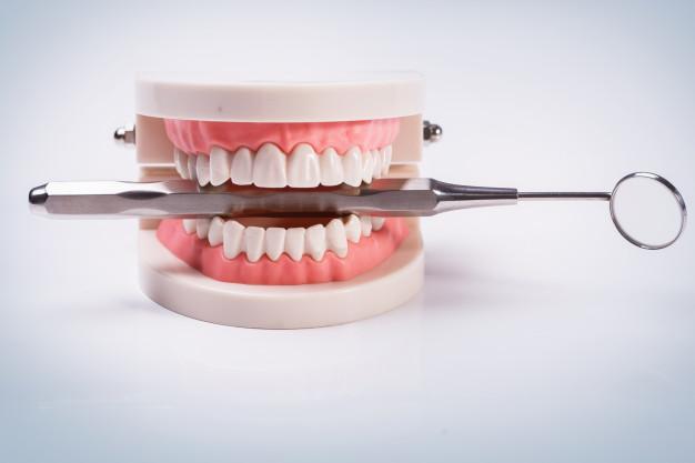 diş implantı nedir